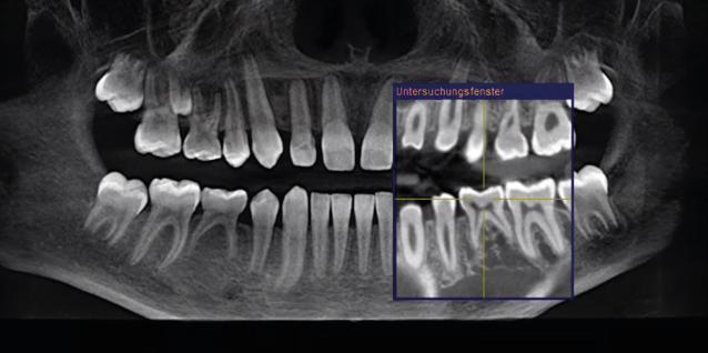 Bilder von 3D-Röntgenaufnahmen